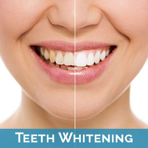 Teeth Whitening Parkland
