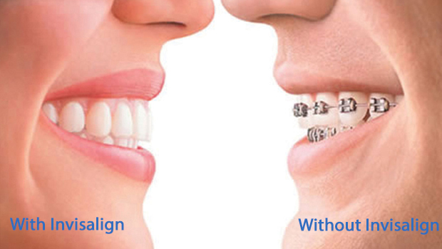 Orthodontic Procedures Tacoma