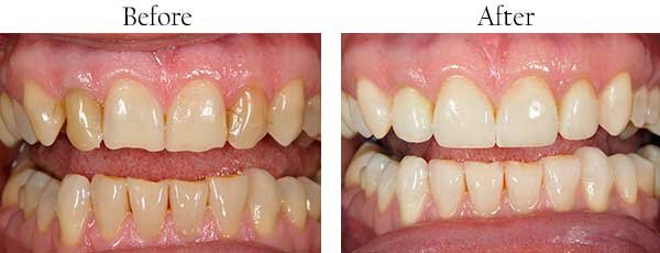 Before & After Dental Procedures Gallery in Tacoma